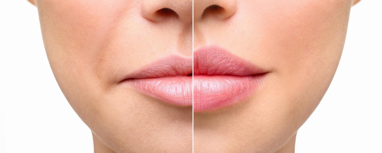 banner of Enjoy Beautiful Fuller Lips